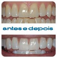 Branqueamento Dentario: antes e depois