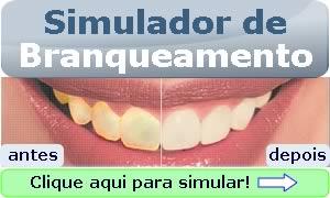 Simulador de Branqueamento Dentário