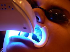 Branqueamento Dentario A Laser Saiba Como Funciona